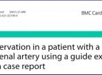 王沛坚教授首创:以延长导管辅助完成对肾动脉高度迂曲难治性高血压患者的RDN手术